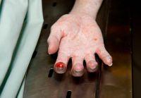 Blood on finger of murder victim